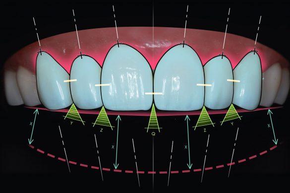 Perth Prosthodontist Dental Image