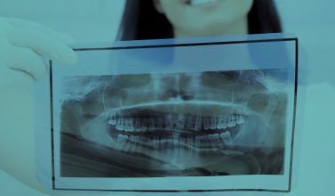 X-ray for oral dental surgery