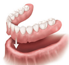 Immediate dentures at Arial Dental