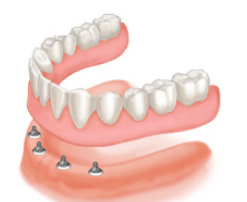 Implant-supported denture at Arial Dental