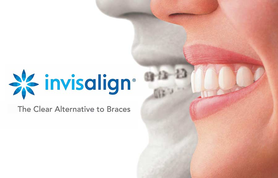 Invisalign Clear Aligners & Orthodontic Aria Dental Perth