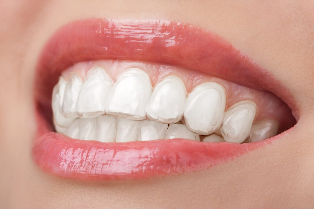 teeth with clear braces
